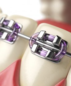 servicii-ortodontie1